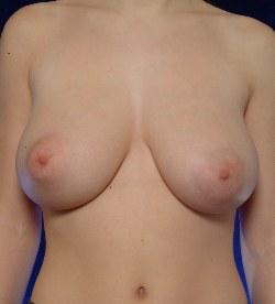 Femme aux seins de jeune fille