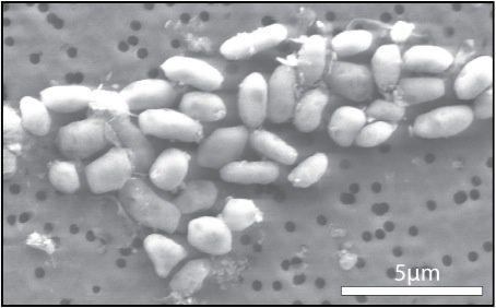 Il presunto batterio all'arsenico GFAJ-1. Cortesia: Jodi Switzer Blum / NASA