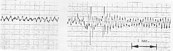 fig.1 : Extrait de l'enregistrement du champ magnétique produit par deux OVNIs. Il a été réalisé en juillet 1978 par l'équipe de Ray Stanford et révèle des variations pratiquement sinusoïdales à une fréquence variant entre 5 et 10 Hz. Les grandes variations d'intensité du champ étaient corrélées avec les accélérations des OVNIs, mais certaines irrégularités peuvent avoir été produites aussi par un effet d'interférence.