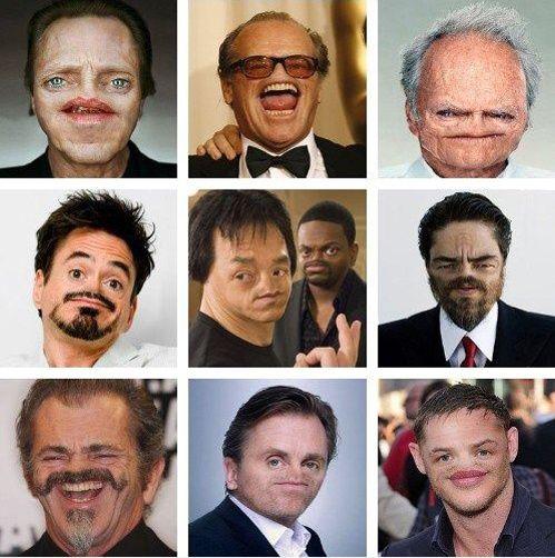 Célébrités sans nez