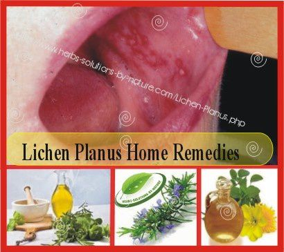 Natural Remedies For Lichen Planus Of The Mouth