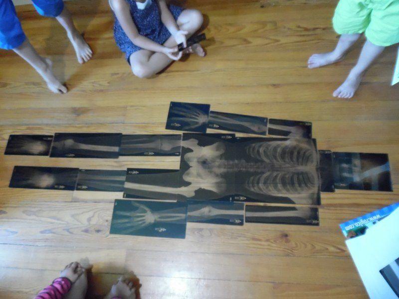 Je leur ai donc proposé de faire le puzzle du squelette avec des radiographies.