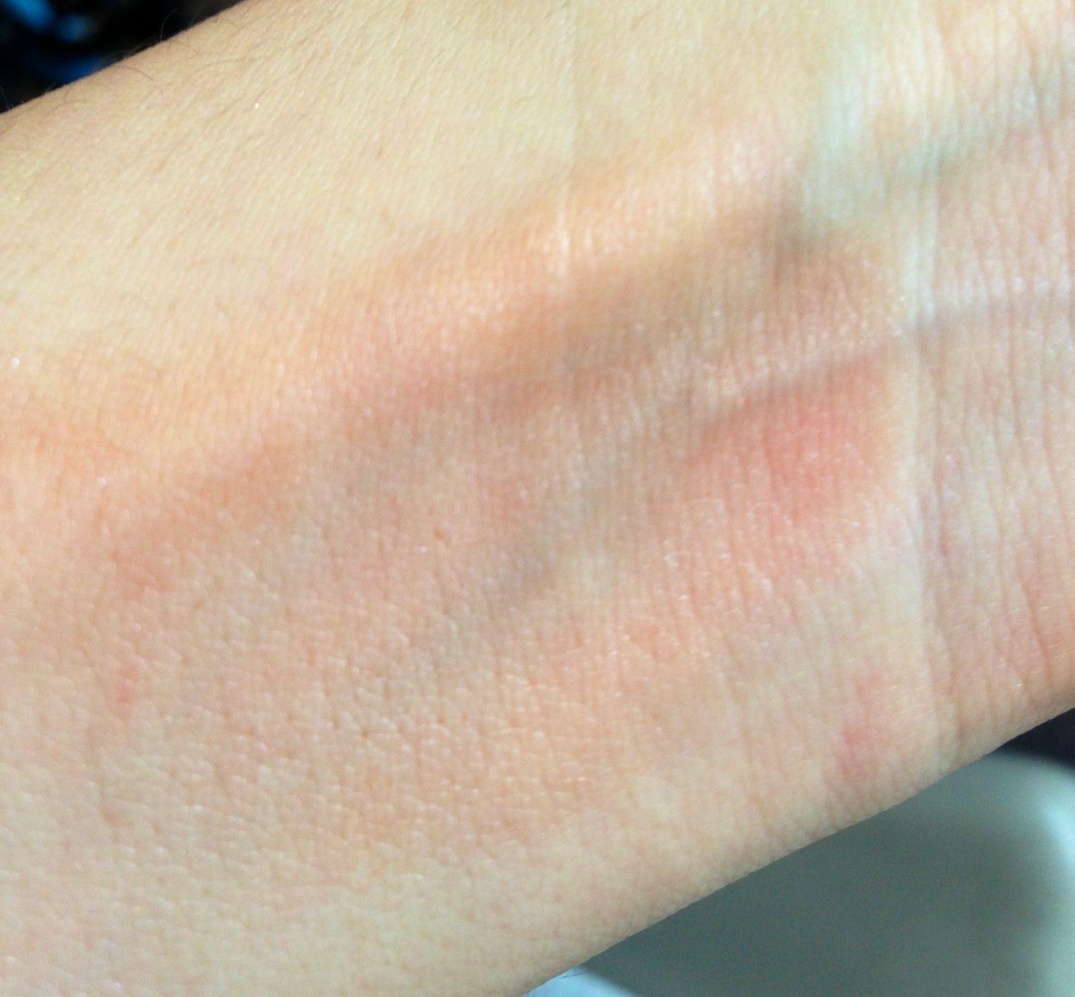 Effet de Charisme sur ma peau... trop foncé!