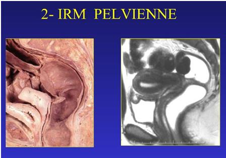 Diagnostiquer l'endométriose pelvienne profonde