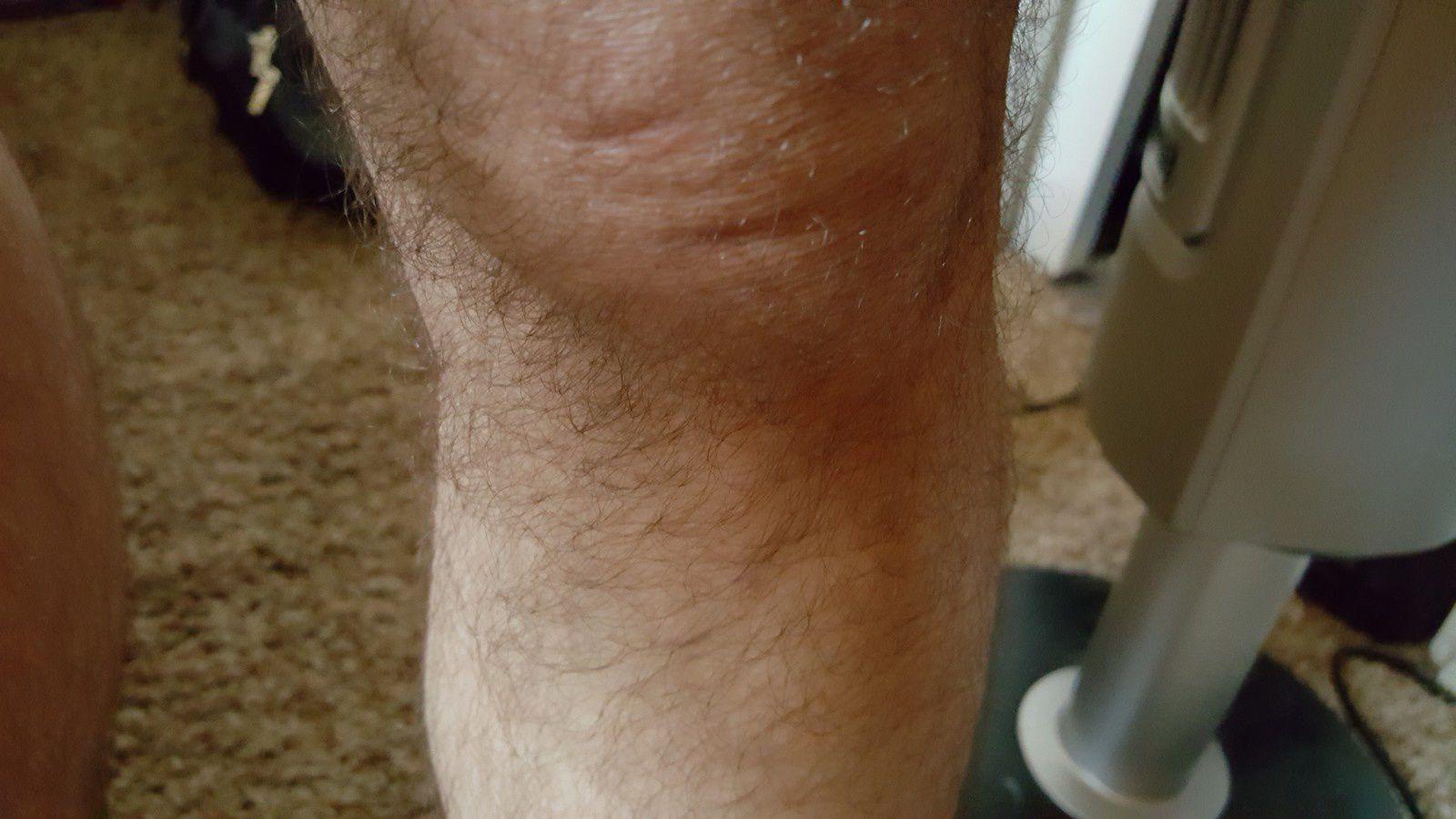 Photo : marque sur le genoux gauche...