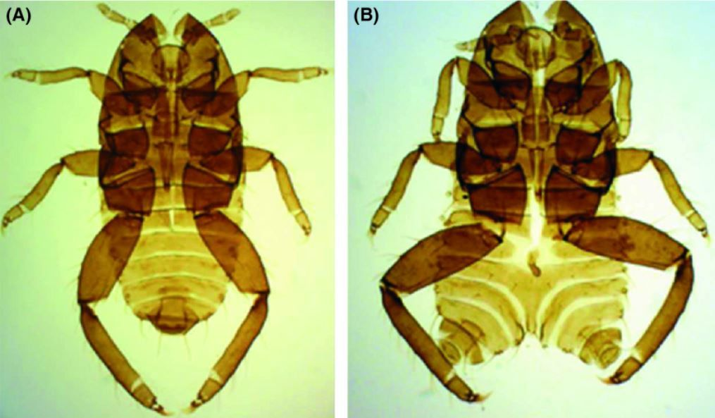 Puceron T. Sorini de Fukushima. (A) morphologie normale, (B) malformation de niveau 3 de l'abdomen (Source : S. Akimoto)