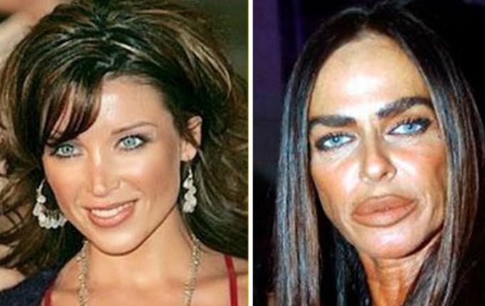 De la chirurgie esthétique