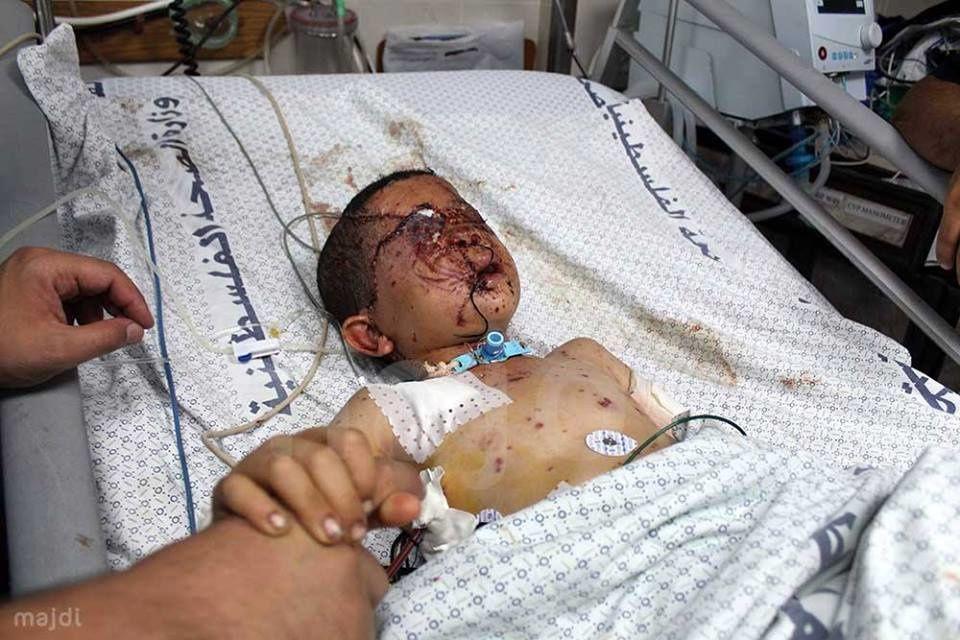 Enfant de Gaza - 2014.