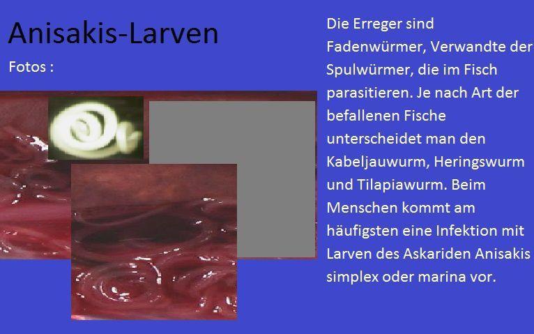 Professorin, Dott. Anna Falsino Einführung in die richtige Herstellung von Nahrungsmittel cHef /a. caiazzo  Diätische Küche . Foto N.r :3 muffigen Geruch ab und machen als wilder Schimmel viele Speisen ungenießbar. Dabei sind einige Arten hilfreich, andere harmlos, manche aber gesundheitsgefährdend. So bilden einige Spezies hochgiftige Stoffe, wie die Aflatoxine aus Aspergillus flavus.   Entsprechend sind nicht willkommen ist Schimmelbefall auf Lebensmitteln. Auf einigen Nahrungsmitteln ist er aber sogar erwünscht. Er verleiht beispielsweise als Edelschimmel Käse und Salami einen besonders intensiven Geschmack. Ebenfalls zu den »guten« Schimmelpilzen gehören solche, aus denen sich Antibiotika wie das Penicillin oder Cholesterol-senkende Medikamente wie Lovastatin gewinnen lassen. Einige sind  wenig willkommen z.B. Diese Schimmelpilz auf das Brot , Obst, Zitrone,  sind zu vermeide weil enthalten in sich toxische sporen genannt Aflatoxin, sind Weiss Schimmelpilz ,gehören zu der Familie. Aspergillus flavus, Foto N.r : 4