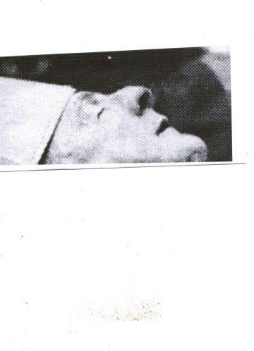 Un profil troublant avec deux cicatrices .&#x3B;ablation du matériel de correction du nez? voir dans recherche notre album