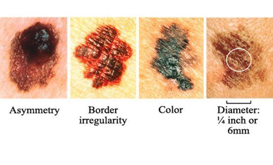 Tumor pigmentado en el cuero cabelludo en un varon de 59 años
