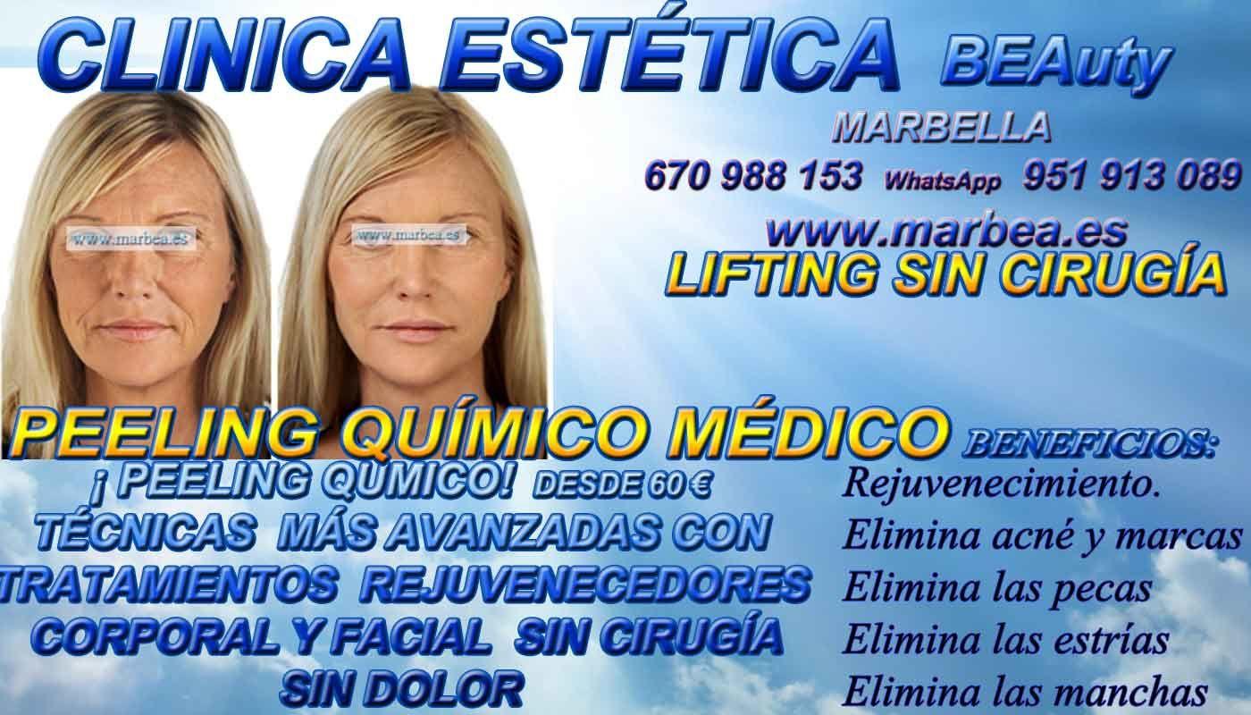 PEELING EN MARBELLA FACIAL QUÍMICO   EN MARBELLAPARA QUITAR  :    MANCHAS ,ACNÉ , MARCAS , CICATRICES , MANCHAS , PECAS , ESTRÍAS ,  CLINICA ESTÉTICA MARBELLA | AVD. PUERTA DEL MAR 3 | 29600 MARBELLA  con pagina web http://www.marbea.es/ ofrece:   LIFTING FACIAL SIN CIRUGÍA MARBELLA ,  CARBOXITERAPIA MARBELLA    TRATAMIENTO MARBELLA  ,   RADIOFRECUENCIA FACIAL Y CORPORAL MARBELLA ,  PEELING QUÍMICO   FACIAL EN MARBELLA    VACUMTERAPIA MARBELLA  ,   CRIOTERAPIA MARBELLA ,  ESTETICA MARBELLA   ,  PEELING QUÍMICO MARBELLA  TRIPOLAR  MARBELLA ,   RELLENAR LABIOS MARBELLA