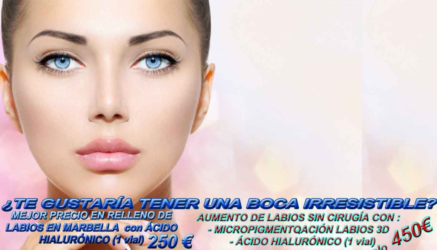 http://www.marbea.es/labios-marbella-acido-hialuronico-tratamientos-aumento-rellenos-aumentar-volumen-labios-forma-natural-sin-cirugia-rellenador-labial-perfectos/
