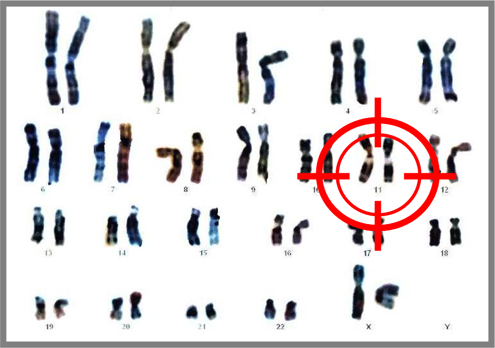 Caryotype d'une petite fille, avant naissance - National Human Genome Research Institute
