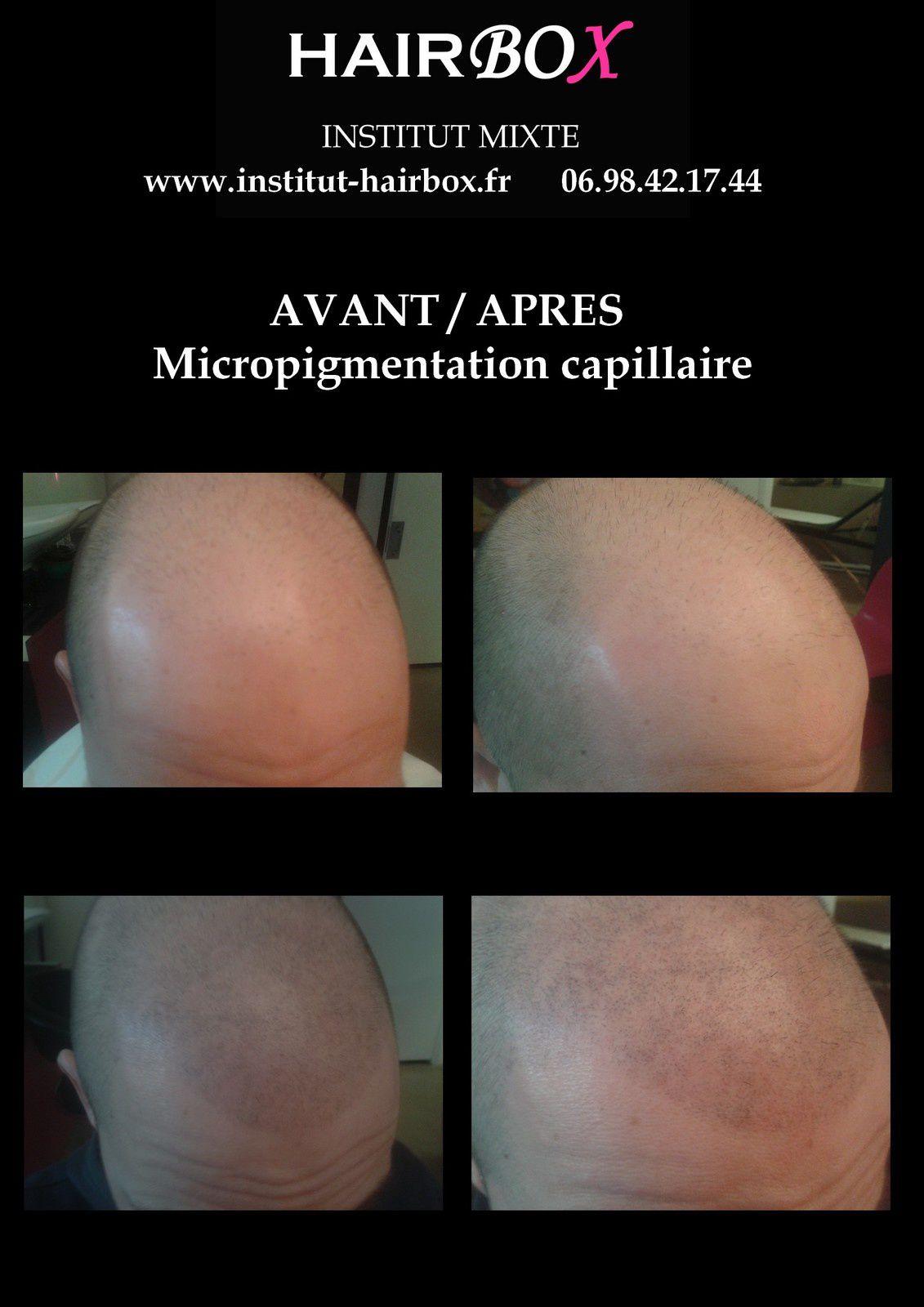 micropigmentation capillaire aix en provence institut hairbox, tatouage cheveux