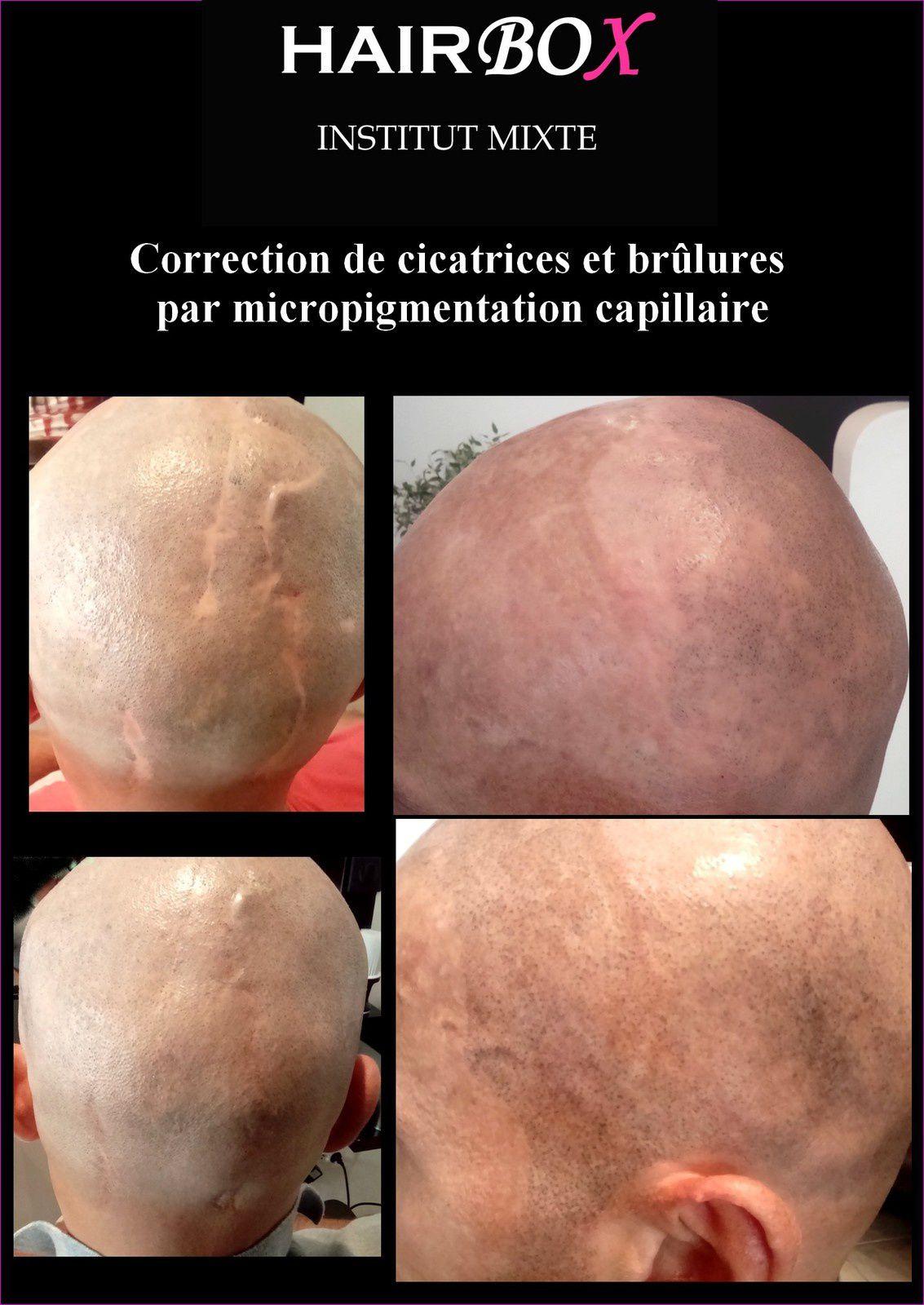 micropigmentation sur cicatrices et brûlures