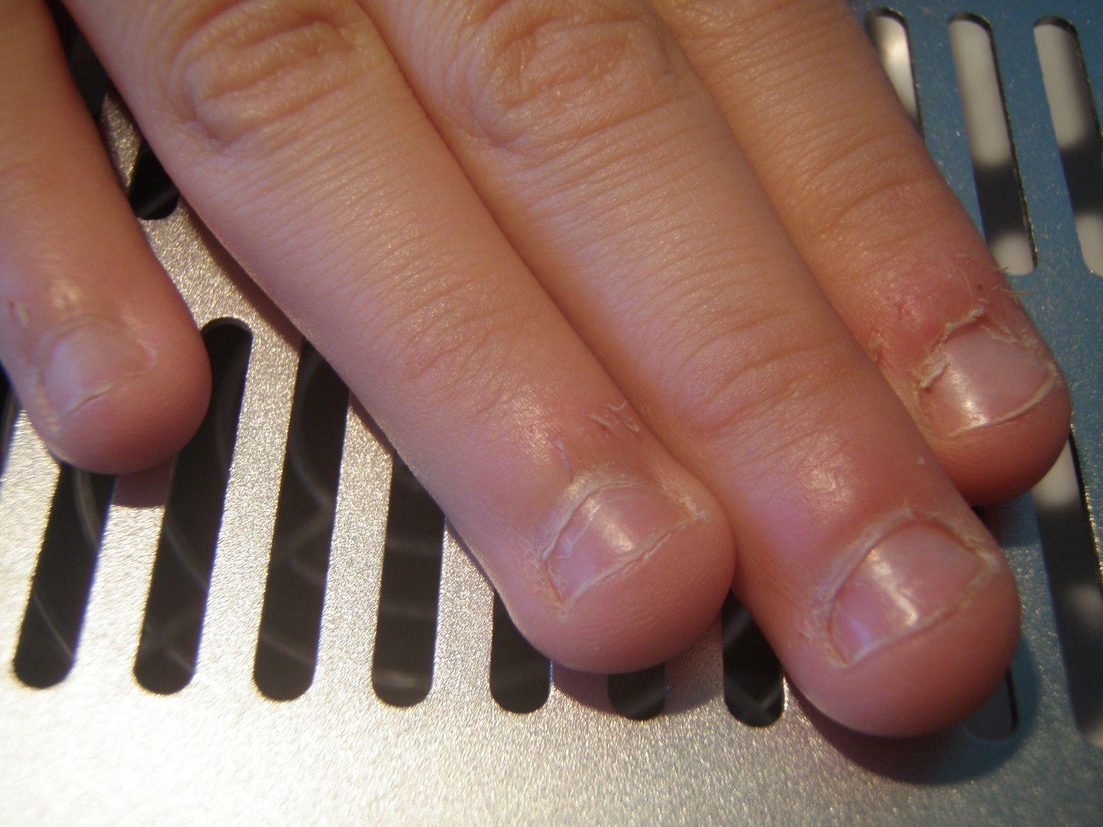 Pose résine sur ongles rongés