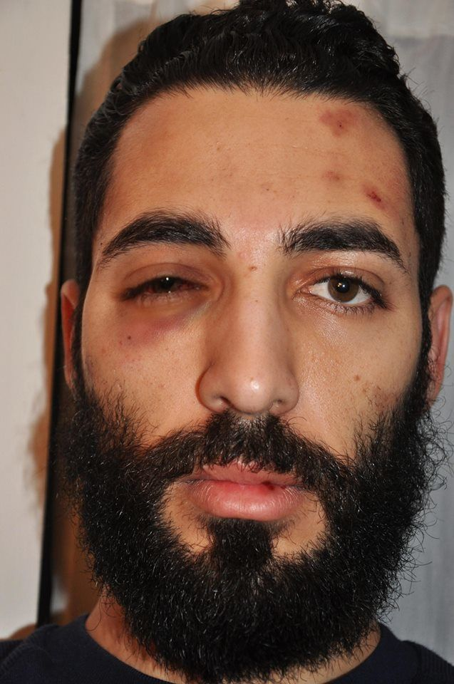French artist Combo was assaulted in Paris