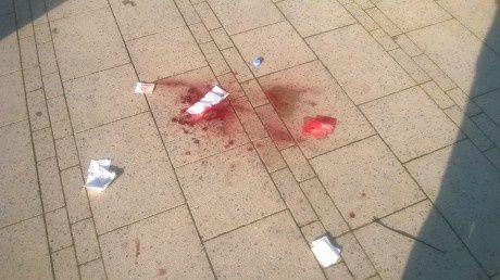 Impunité pour les policiers du 17 mars : le sang sur les marches de la Fac de Droit de Strasbourg reste sans vérité ni justice !