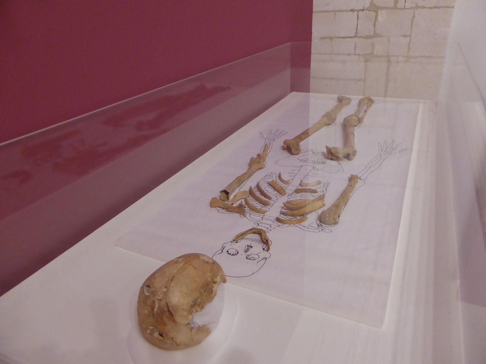 Ossements de Nithard décédé en 858 ou 859 © Photographie Le Curieux des arts Gilles Kraemer, visite presse, juin 2014