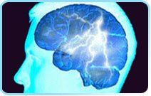 Migraines, les &quot&#x3B;auras migraineuses&quot&#x3B;, signes avant-coureurs