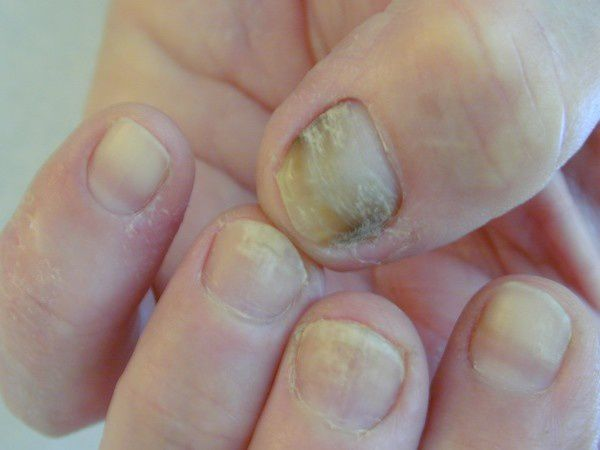 Les piqûres metotreksata au psoriasis