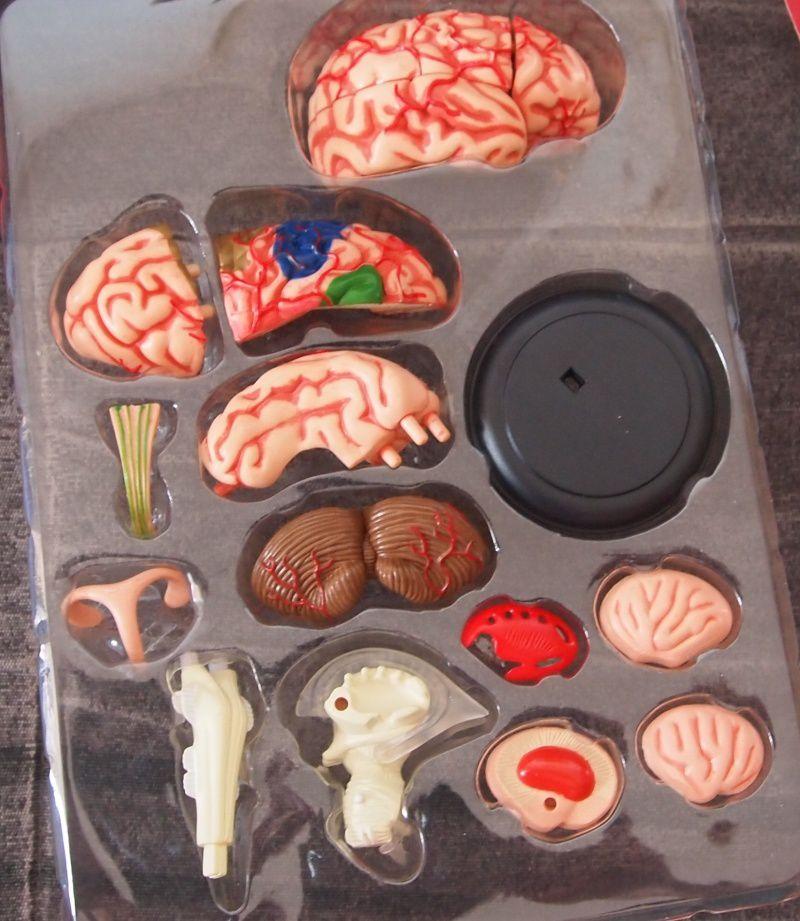 Le cerveau démonté