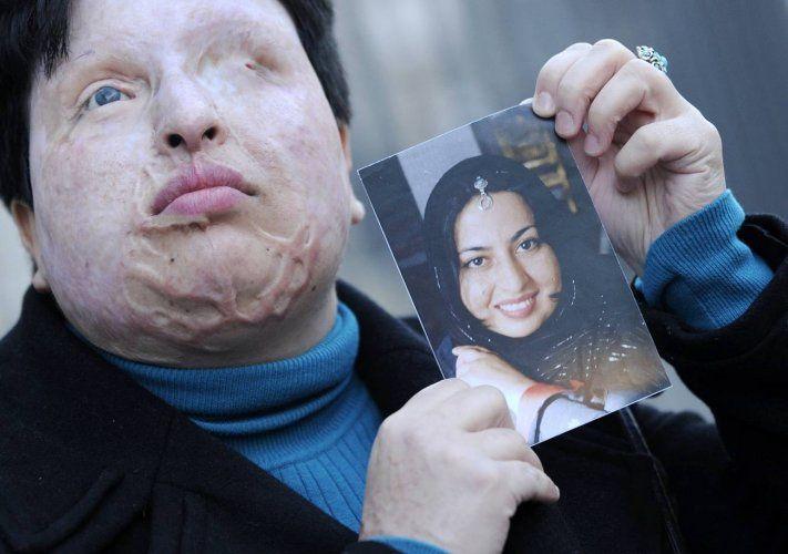 Iran. Défigurée à l'acide et aveugle, cette jeune femme obtient l'application de la loi du Talion DDM - Source de la photo : la dépêche du Midi.