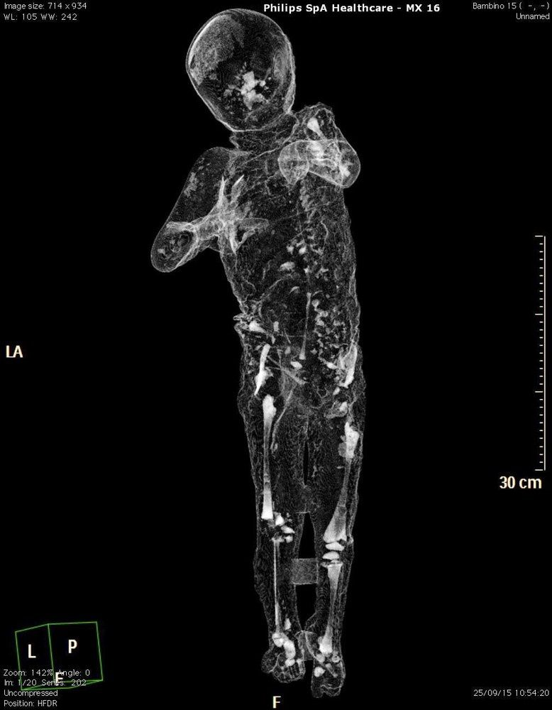CAT scan provided by the press organ of the Archaeological Superintendent of Pompeii - photo Cesara Abbate EPA