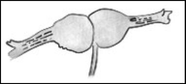 Les pièces florales soudées entourent la noisette (http://floranet.pagesperso-orange.fr/gene/botagen/gen8.htm)