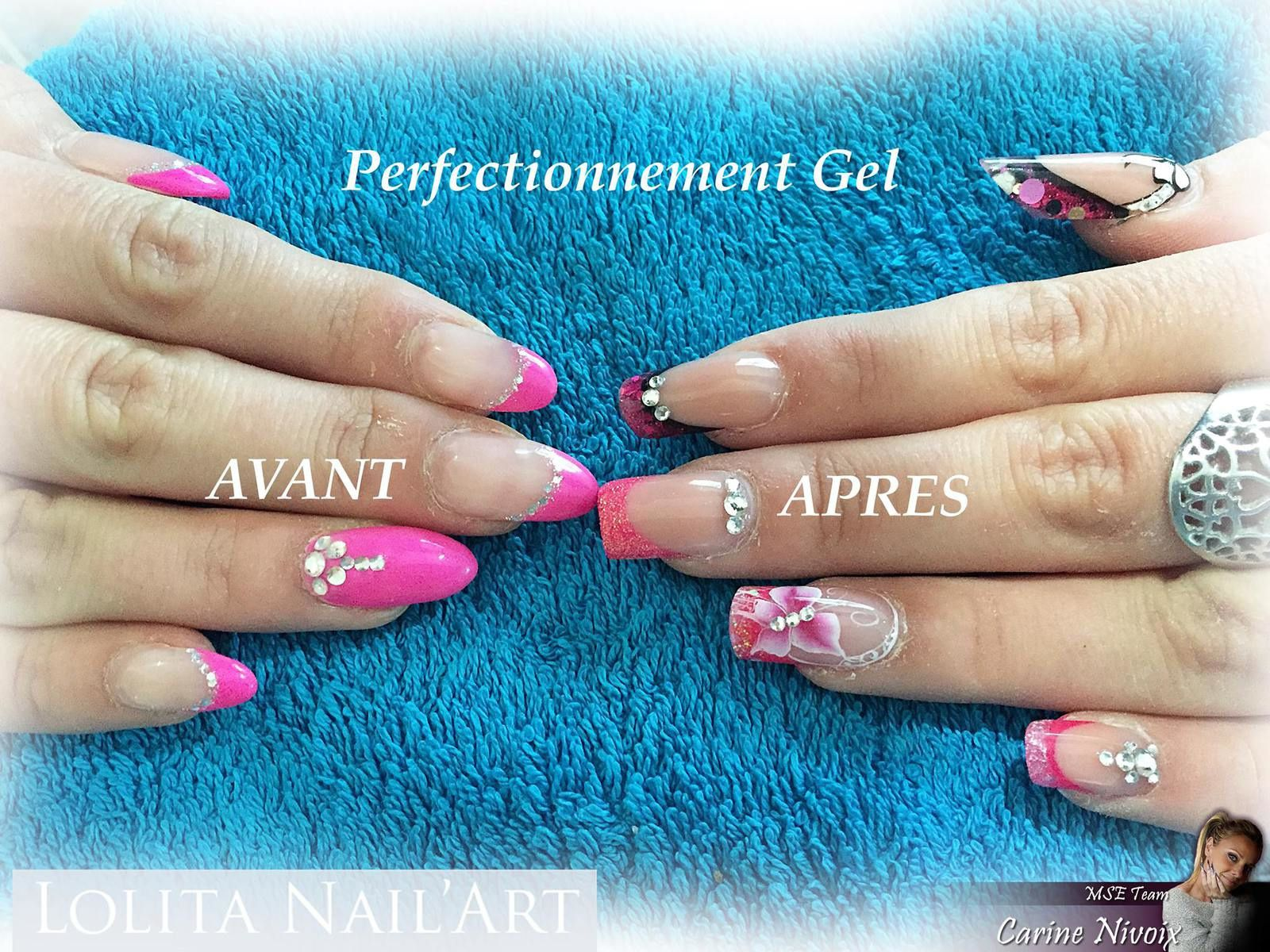 Perfectionnement Gel