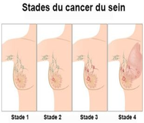 Cancer du sein : Dfinition, causes, types de cancer