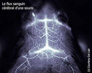 Laser et nanotubes pour un nouveau type d'imagerie cérébrale