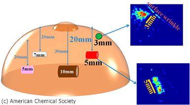 Une &quot&#x3B;peau électronique&quot&#x3B; pour lutter contre le cancer du sein