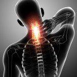 """""""text neck syndrome"""" (síndrome del cuello de texto) – 10 tips para reducirlo"""