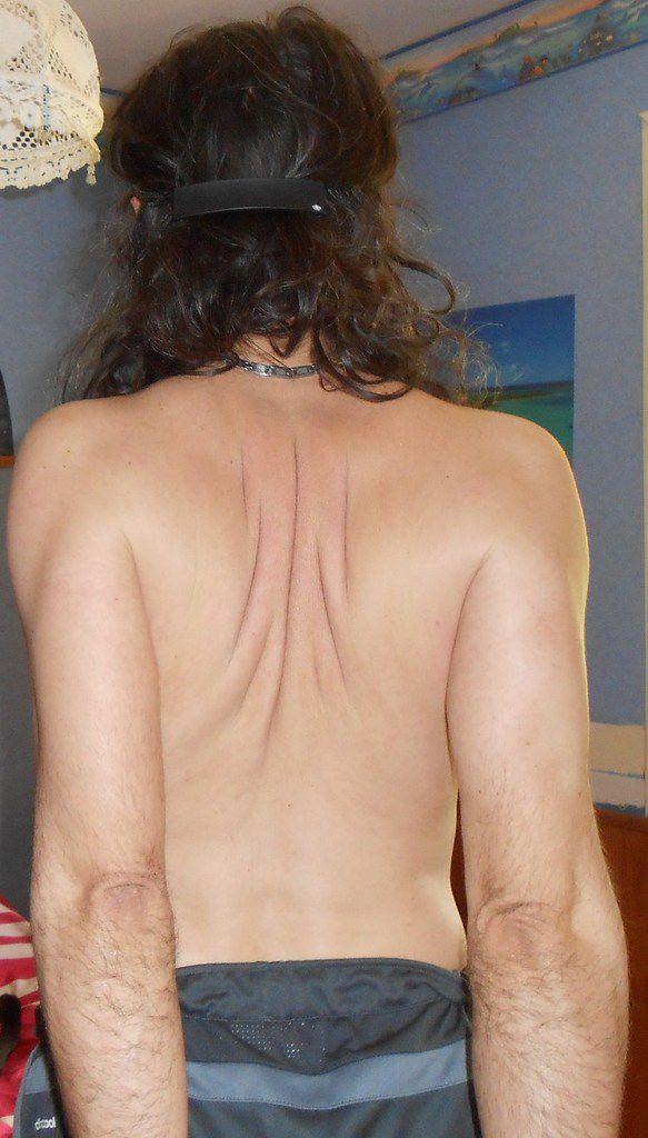 Assouplissement des épaules. Relieving Shoulders pain.
