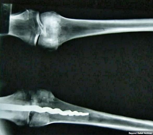 Le mystère d'une broche orthopédique au genou d'une momie égyptienne de 3000 ans