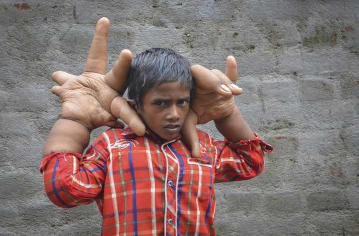 VIDEO: Cet enfant vit avec des mains de 12 kilos
