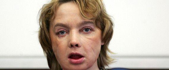 Décès en France de la première femme au monde greffée du visage