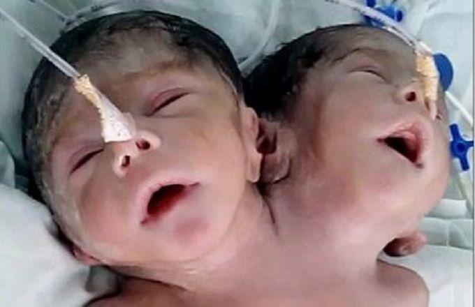 Un bébé naît avec deux têtes