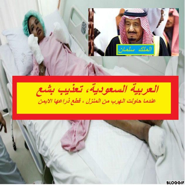 Saudia, العربية السعودية، تعذيب بشع