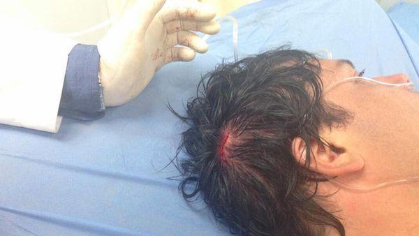 Carlos Paparoni tiene un corte en la cabeza y debió ser internado luego de que el chorro de agua de una cisterna antidisturbios lo derribara en una marcha antigubernamental. Además, tiene un traumatismo en un hombro