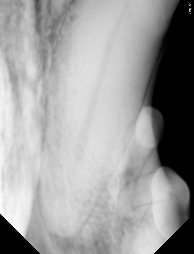 radiographie apicale
