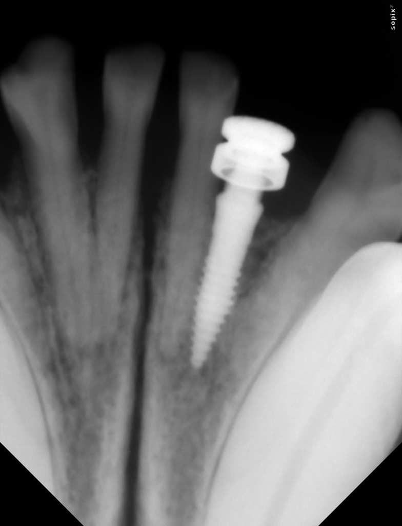 radiographie post implantation : la visse de cicatrisation est placée sur l'implant