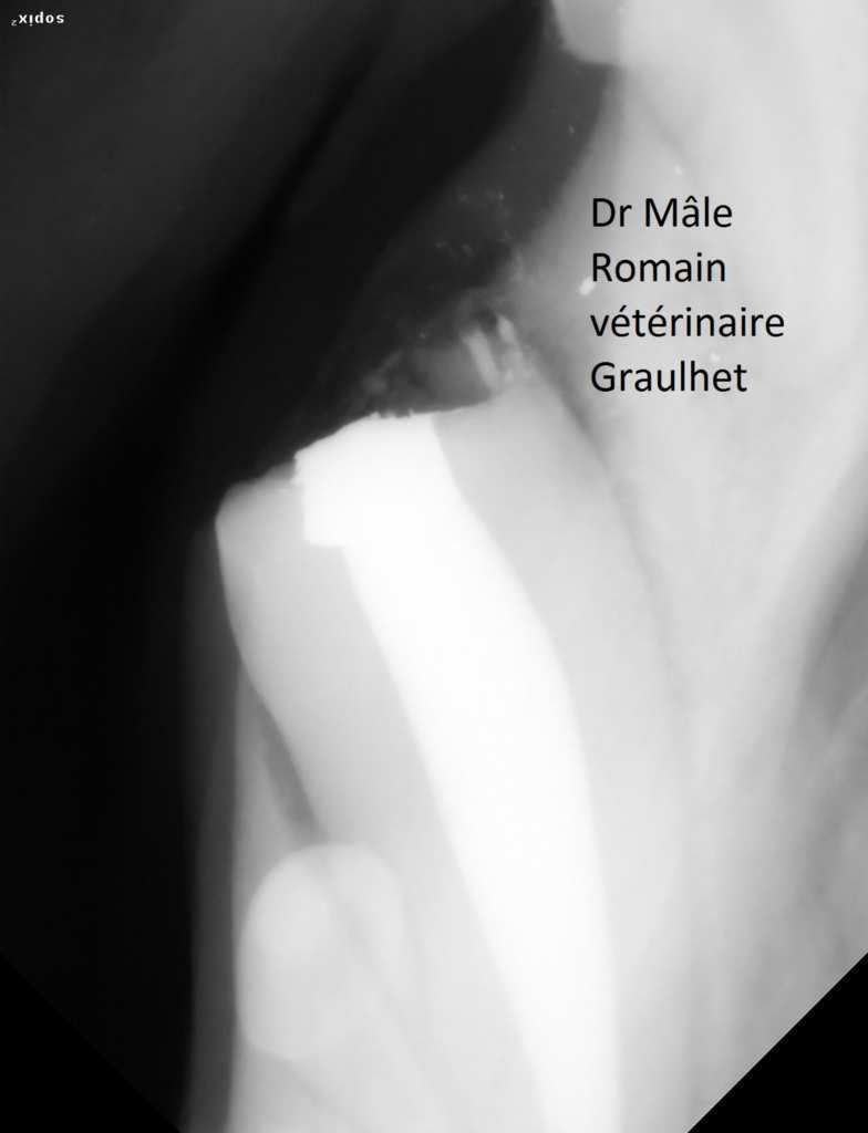 Fracture canine 204 corono-radiculaire