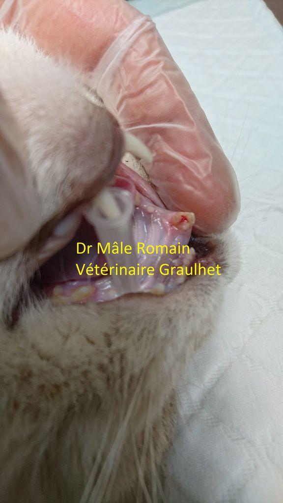 image per opératoire de la fracture coronaire compliquée de la dent 104