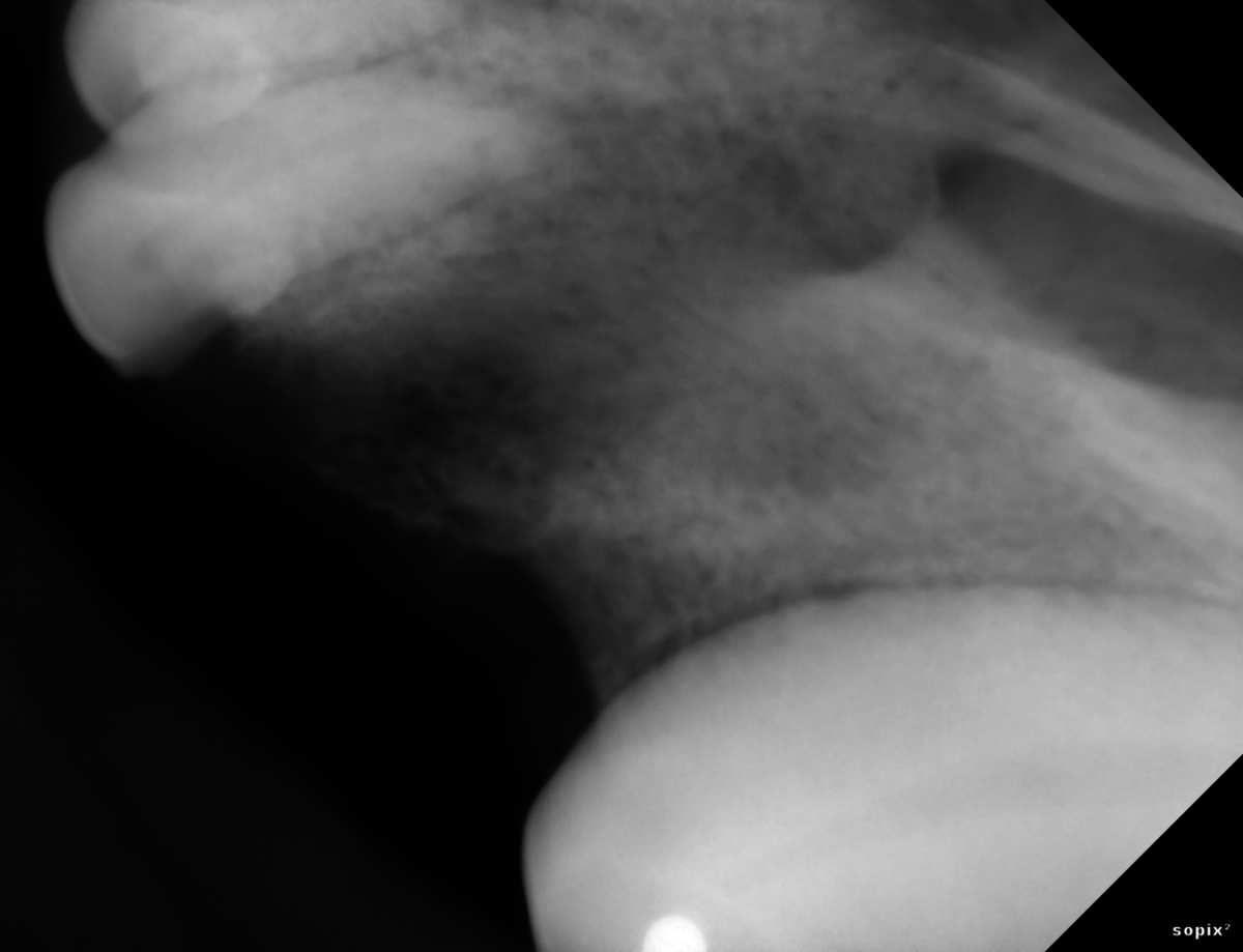 radiographie post extraction de la dent 203