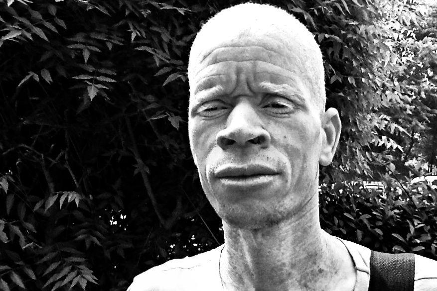 """Nejib Ould Dah, président de l'OMAPI : """"La plupart des albinos mauritaniens ne sont pas scolarisés"""""""