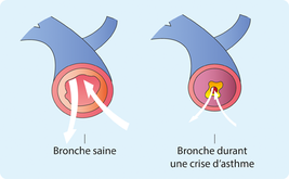 Entretiens Asthme