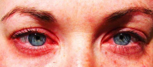 Déménagement villes/projets sur le serveur Survie Ob_ae4932_yeux-rouges-allergie